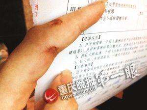 女白领打耗子遭咬伤手 发高烧尿血连打三种疫