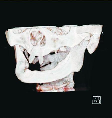 CT片上王鹏的两颗畸形牙清晰可见