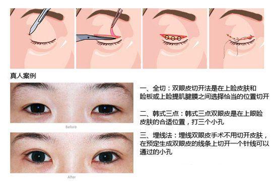 二,韩式三点:韩式三点双眼皮是在上眼睑皮肤的合适位置,打三个小孔