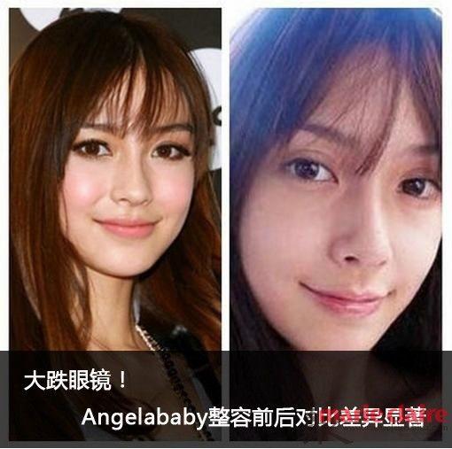 大跌眼镜 Angelababy整容前后对比差异显著图片