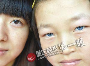 陈贵秀的蓝眼睛和正常人的黑眼睛有明显区别