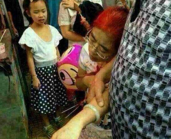 贵阳市民买羊肉串被刺伤:竹签刺进太阳穴女子侧脸满是鲜血
