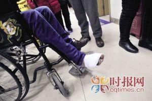小曾正在医院治疗被自动扶梯夹伤的右脚