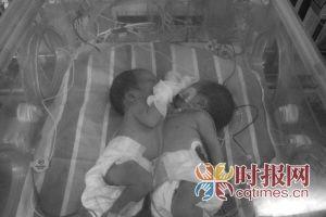 新桥医院医护人员将连体儿从云阳县接上救护车的保温箱,进行监护 新桥医院 供图