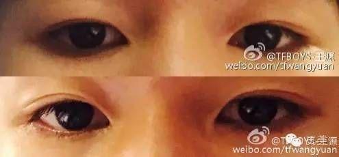 王源16岁生日变双眼皮?到底发生了什么!