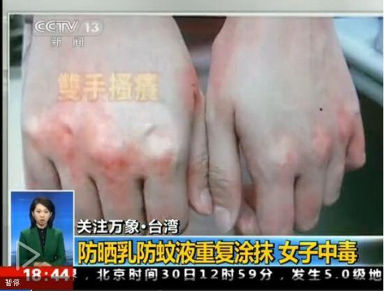 视频:女子同时涂抹防晒乳和防蚊液中毒晕倒