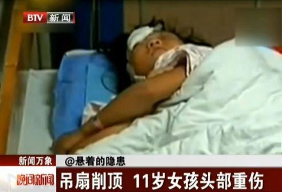 视频:11岁女孩头部遭吊扇削顶致重伤