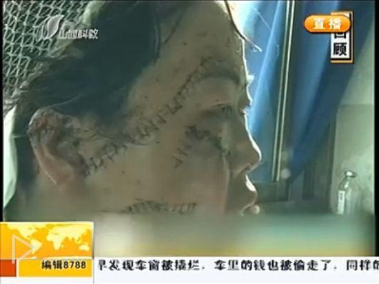 视频:女子因网聊遭丈夫猛砍17刀