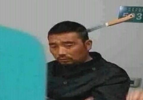 视频:男子头插水果刀独自淡定就医