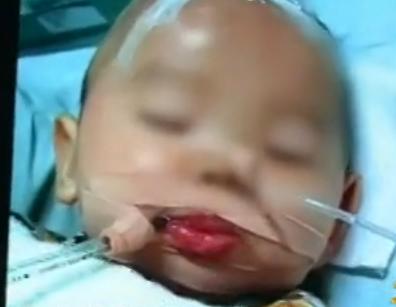 女婴被床垫包装薄膜蒙脸窒息
