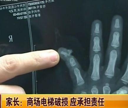 视频:2岁幼童商场扶梯摔伤手指被夹断