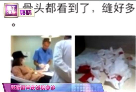 视频:唐嫣半夜就医血流不止疑自残