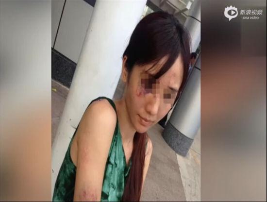 广西美女演员被家暴 因拒弃子女抚养权